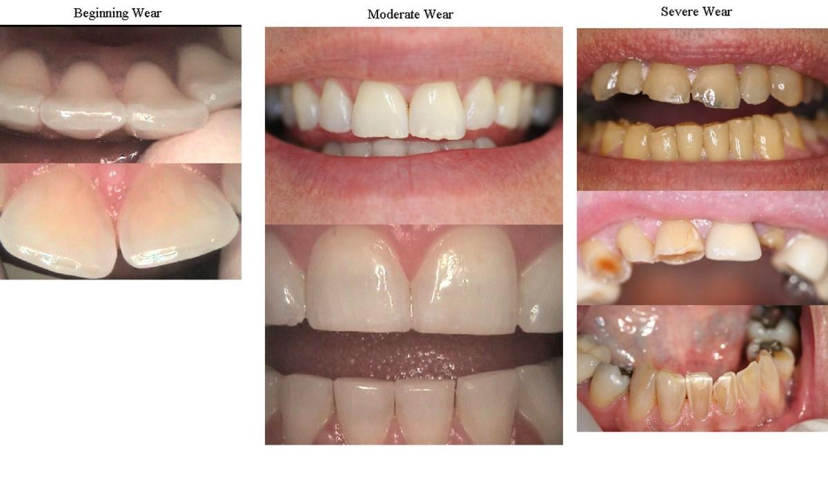 Dentist Bellville   GRINDING OF TEETH (Bruxism)